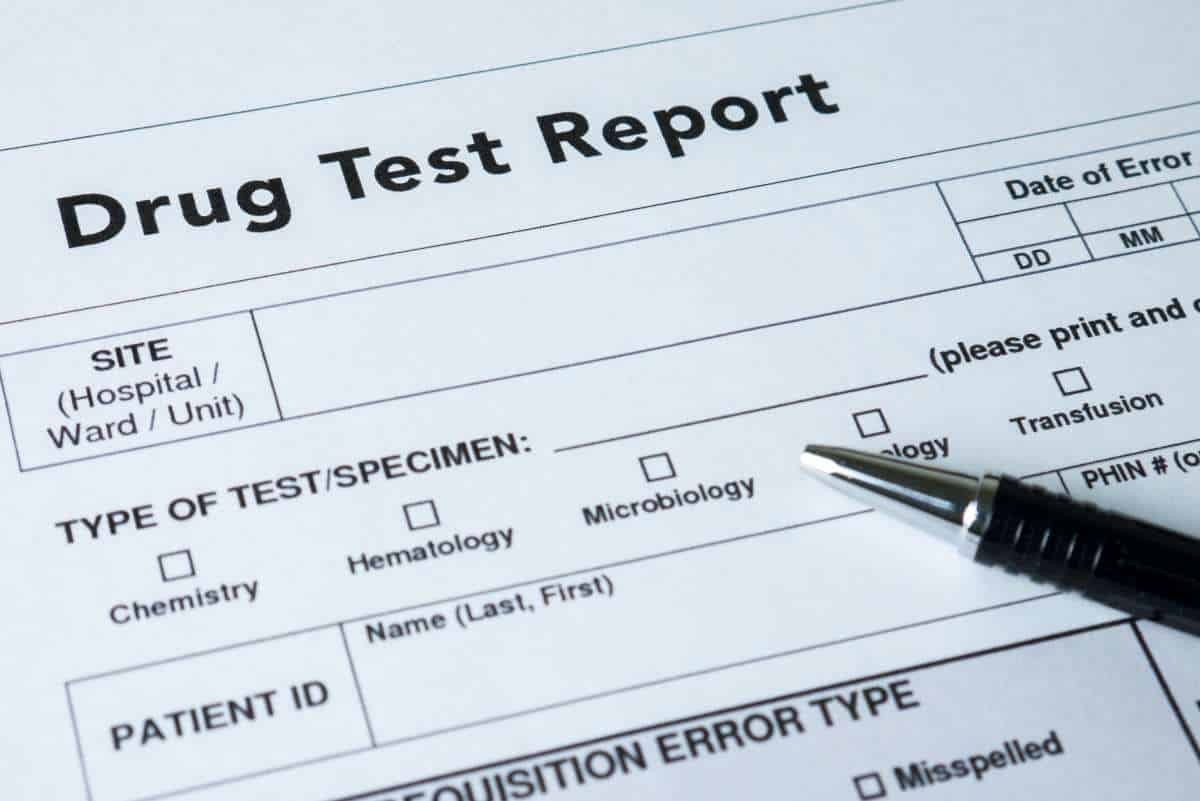 DOT pre-employment drug test is one step in the hiring process