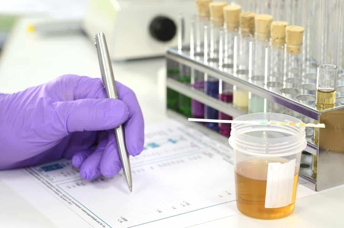 Read more about the article Consortium members benefit from DOT random drug testing rules